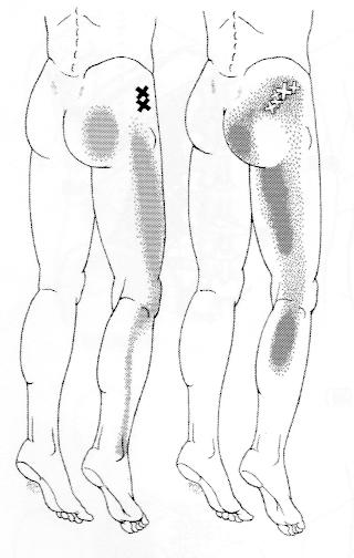 小殿筋のトリガーポイントの関連痛